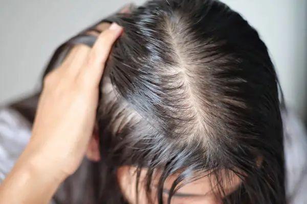 头发发油该怎么办